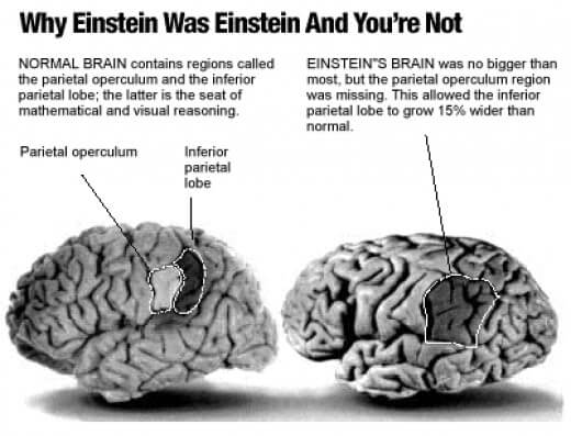 How Albert Einstein's Brain differs from yours | The Myth ...