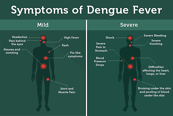 Symptoms of dengue feverSymptoms of dengue fever