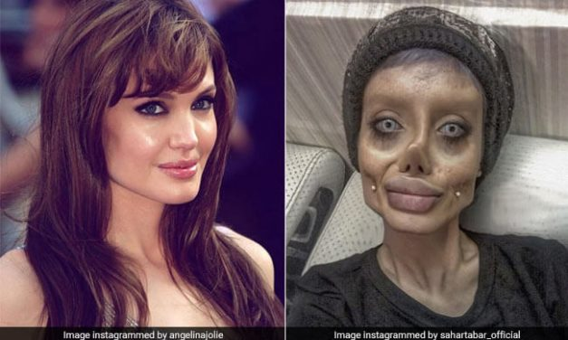 Iranian Teen Sahar Tabar undergoes 50 surgeries to look like Angelina Jolie | Images went Viral
